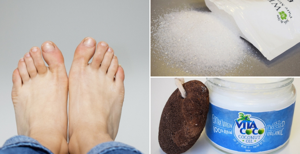 hard skin on feet removal products