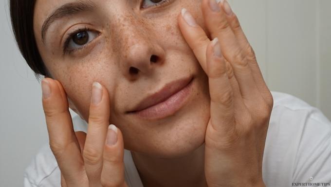 freckled skin