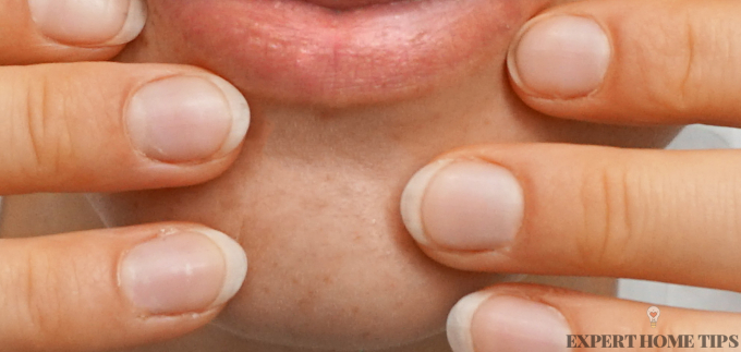 how to get rid of blackheads by squeezing