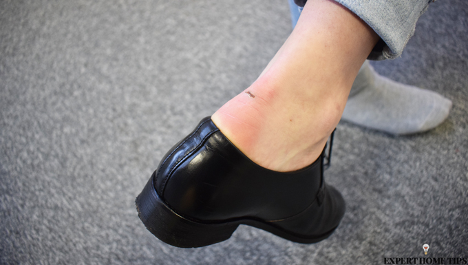 blister from tight shoes
