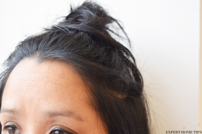 Dandruff Dilemma Find A Dandruff Cure That Works Today Expert