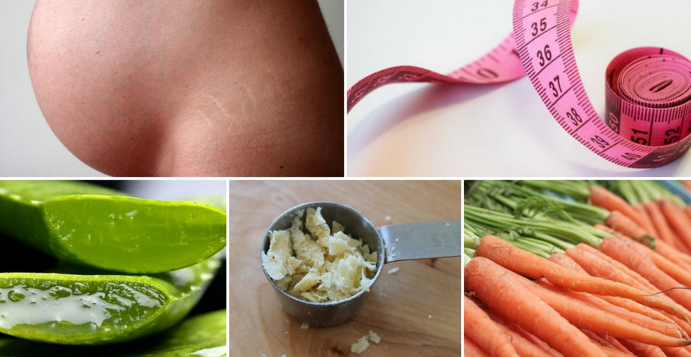 How to get rid of stretch marks FAST: 7 home remedies that really work