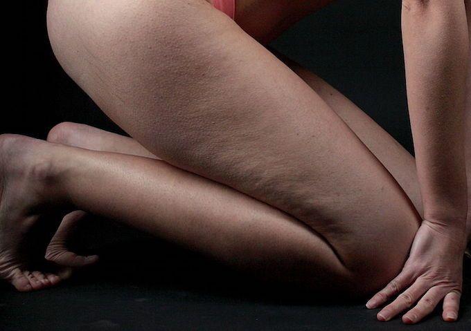 cellulite woman legs
