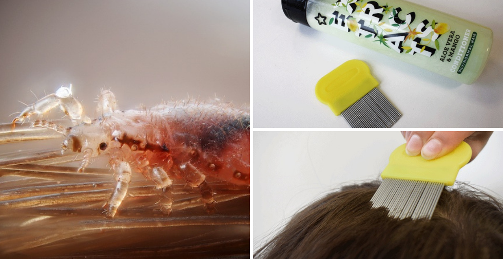 How To Get Rid Of Nits (Head Lice Treatments That ACTUALLY Work!)