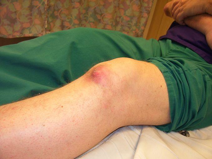 gout knee